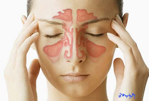 سینوزیت یکی از شایعترین و متداول ترین