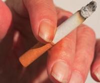 درمان زردی انگشتان از سیگار