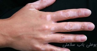 تفاوت برص قابل درمان و غیر قابل درمان