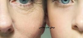 درمان خانگی برای رفع لکه های پیری