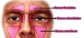 علاج سر دردهای سینوزیتی