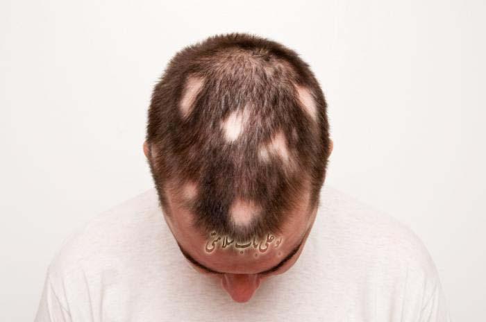 ریزش مو سکه ای و درمان آن