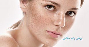 درمان کک و مک صورت